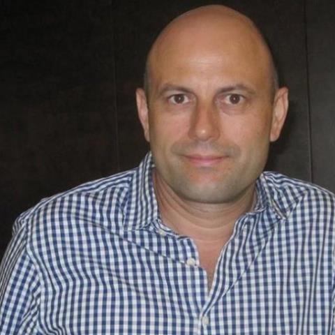 Χάρης Ζαβρίδης : Όλα όσα πρέπει να ξέρουμε για το Face Lift