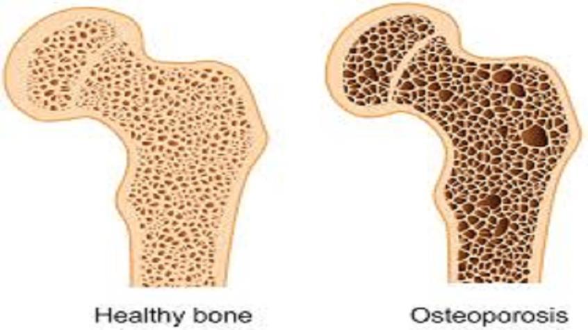Ποιοί παρουσιάζουν οστεοπόρωση και τί ακριβώς σημαίνει οστεοπενία