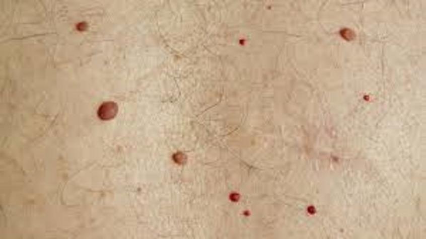Κόκκινες ελιές στο δέρμα: Μην τις αγνοείτε