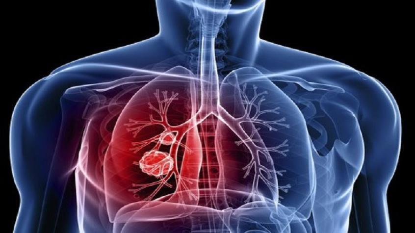 Εκστρατεία διαφώτισης για τον καρκίνο του πνεύμονα για πρώτη φορά στην Κύπρο