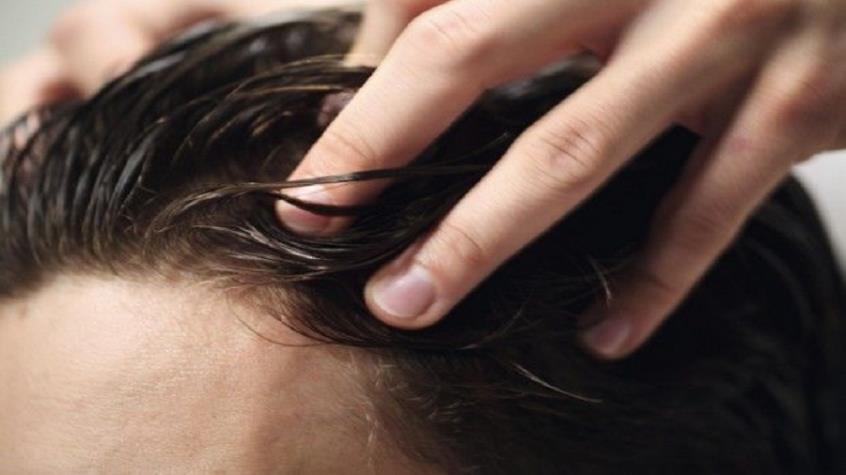 Τριχόπτωση και αραίωση μαλλιών