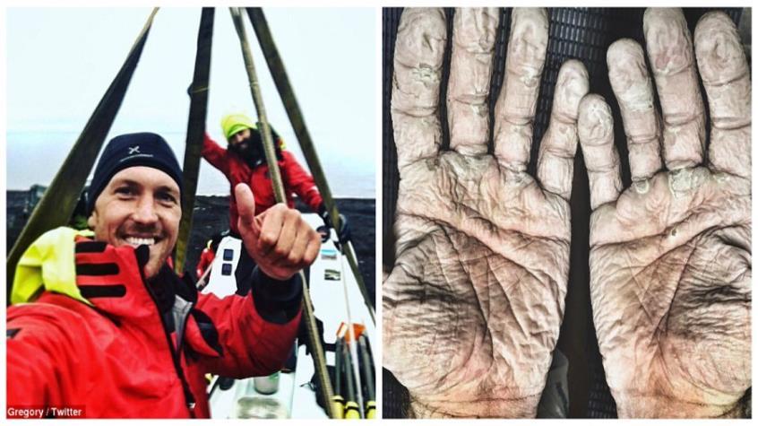Έτσι είναι τα χέρια χρυσού Ολυμπιονίκη μετά από 965 χλμ. κωπηλασίας