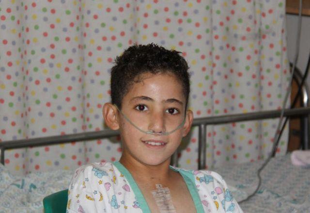 Χειρουργοί του Hadassah επιδιόρθωσαν ανάποδη καρδία