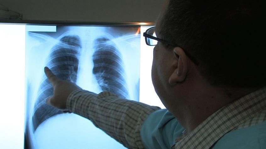 Νέα δεδομένα στην αντιμετώπιση του καρκίνου του πνεύμονα